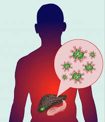 Types of Hepatitis and Homeopathy Treatment