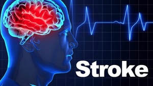 Things You Should Know About Stroke