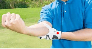 What Do You Need To Know about Golfer's Elbow?