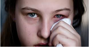 Conjunctivitis Treatment with Homeopathy