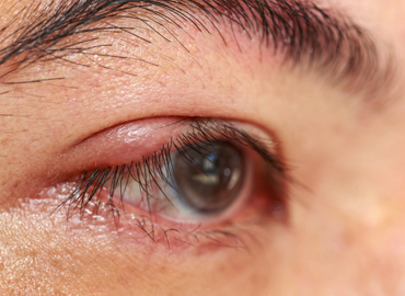 Homeopathy treatment for Blepharitis
