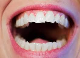 Homeopathy treatment for Gingivitis