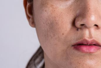 Homeopathy treatment for Melasma at Delphis